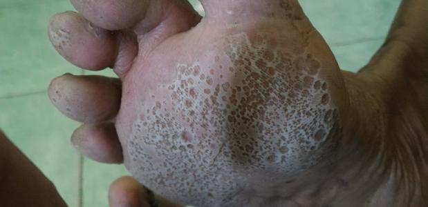 Putjeskeratolyse